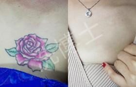 洗博士皮秒洗纹身带给肌肤重生的可能