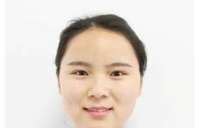 宜昌张佳娟医生:孩子身材矮小有哪些表现?该如何治疗?