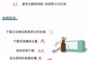 """简单三步丨预防及诊治脚气"""""""