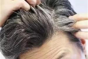 每天吃一勺黑芝麻能让你头发变黑辟谣这时要做的是均衡饮食
