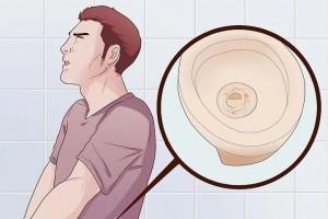 尿血的3个原因已找到第1个不用担心若是第3个尽快看医生