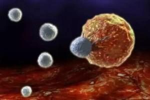 防备癌症免疫疗法上线NK细胞免疫疗法
