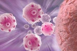量身定制抗癌药物能够杀死肿瘤细胞