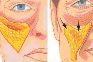 面部皮肤下垂做线雕好仍是超声刀好