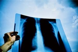 从恐惧到新生,正元胶囊助力一个肺癌患者的胜利曙光