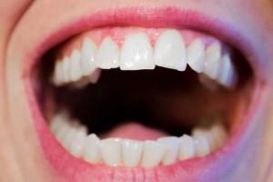 绑牙套会不会改脸型绑牙套要注意什么