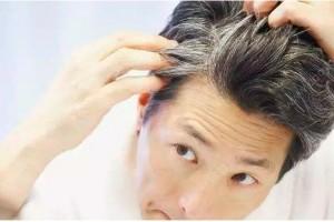 关注头皮健康,菁滋发引领中药养发新理念