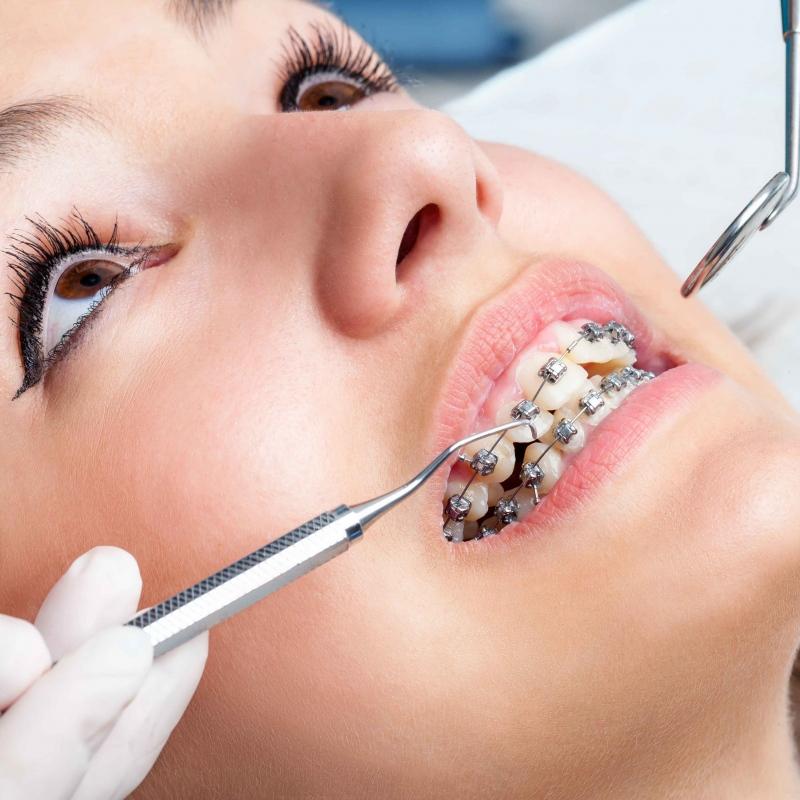 矫正牙齿牙套要戴多久三个会影响到时间的因素