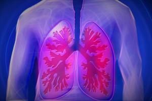 小细胞肺癌和间质性肺炎的区别有哪些我们应该怎么区分