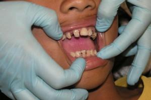 补牙牙套材料有哪几种补牙牙套材料的种类