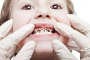 """羿博士提醒您儿童龋齿若不重视,可能会对孩子造成不可逆的影响。"""""""
